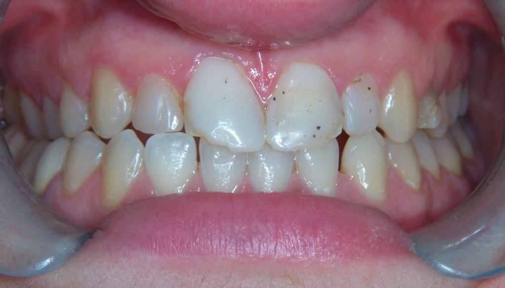 Denti con macchie prima delle faccette