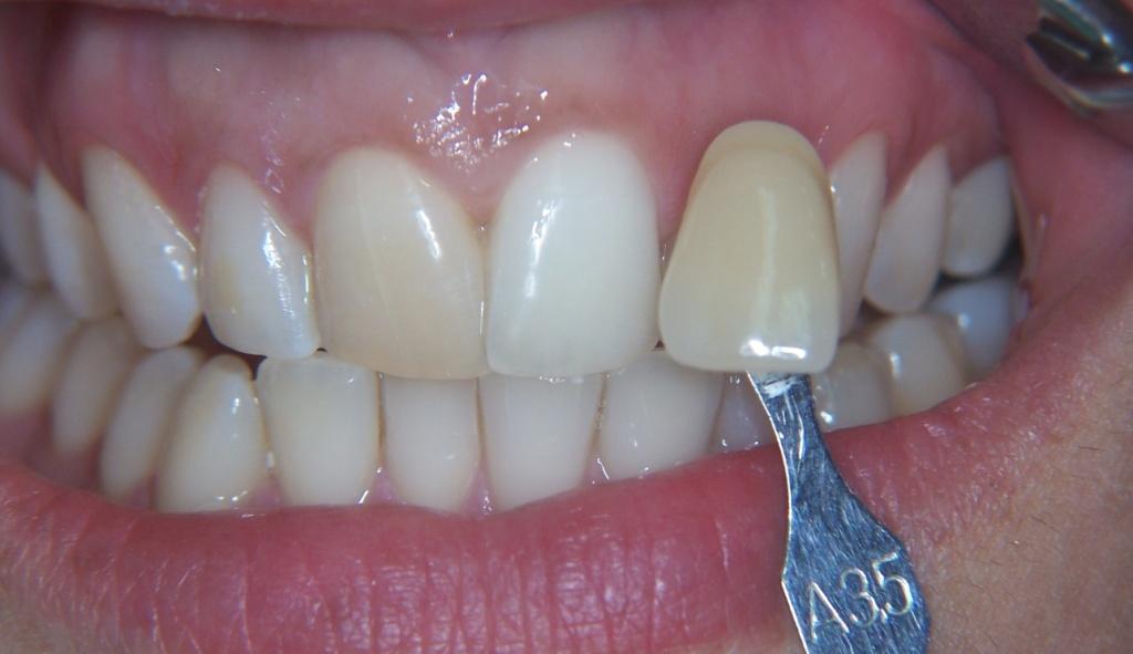 Dente precedentemente devitalizzato ingiallito