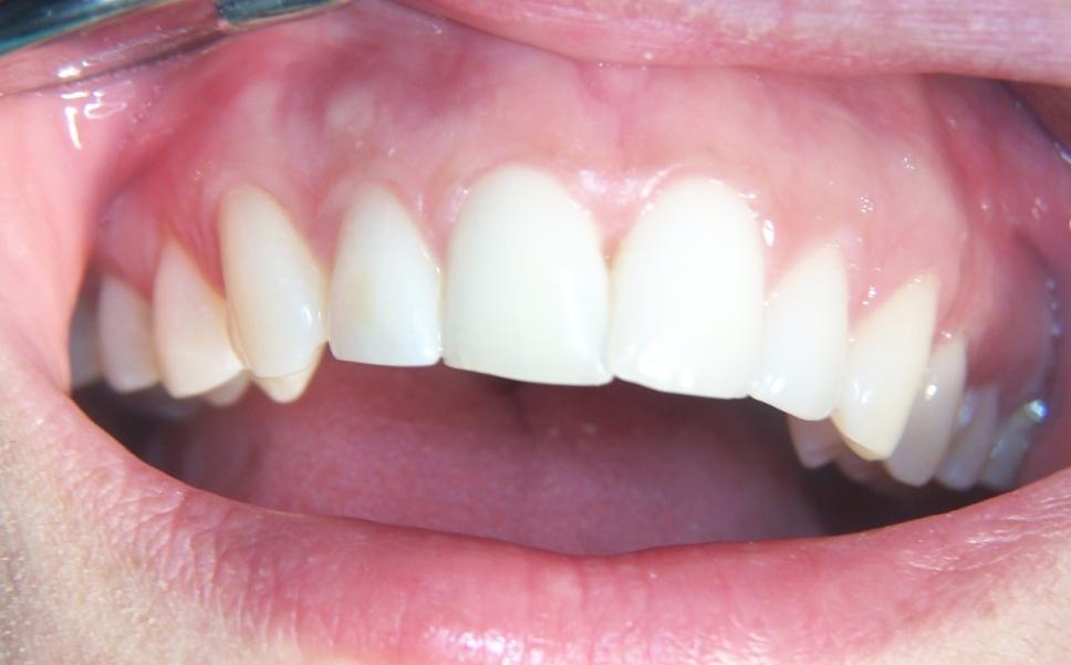 Incisivi dopo lo sbiancamento professionale dei denti con perossido di idrogeno e lampada alogena