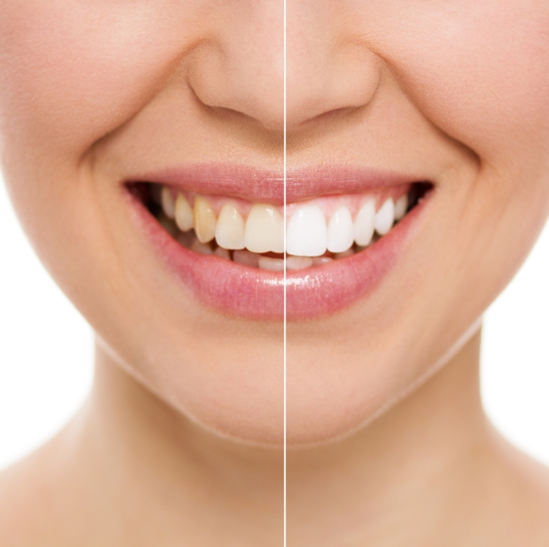 Sbiancamento denti Pescara, Vasto (CH)