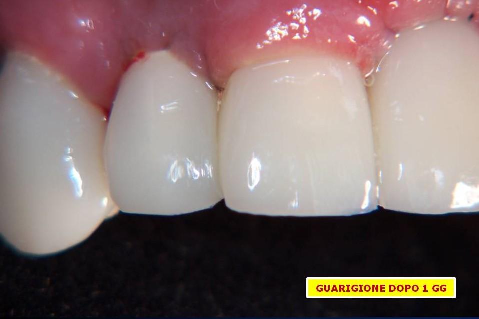 Guarigione veloce grazie all'intervento minimamente invasivo ed utilizzo di Fattori di Crescita (CGF)