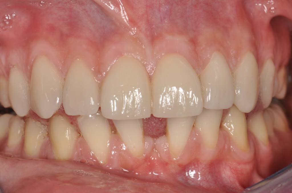 8 faccette dentali, arcata superiore