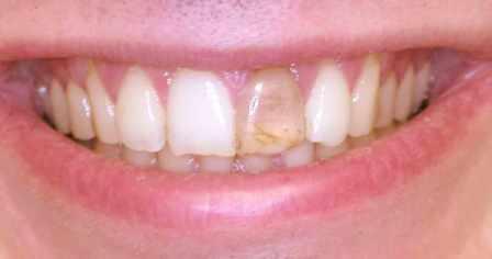 Sorriso del paziente con incisivo centrale scuro