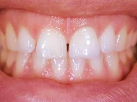 Faccetta in zirconia che ripristina il colore ed estetica del dente