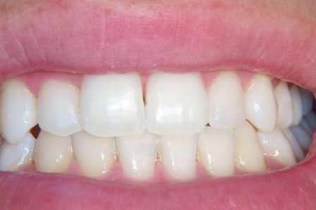 Dopo solo tre sedute professionali di sbiancamento dentale